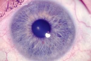 iridiologie